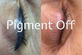pigment off